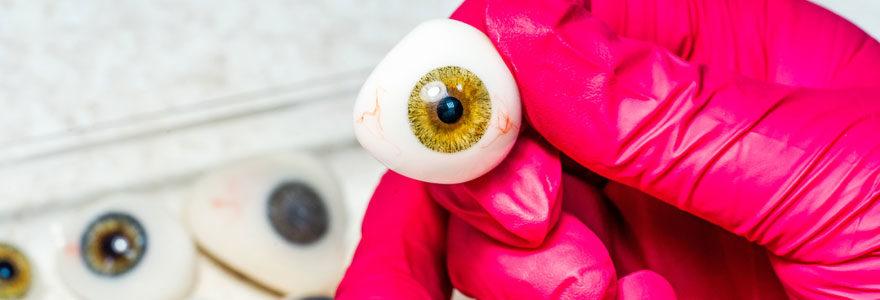 Prothèse oculaire